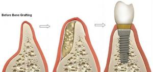 Bone Dental Implant