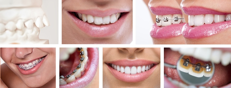 Latest Options in Braces