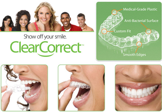 ClearCorrect Removable Braces